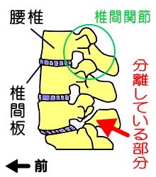 腰椎分離症のイメージ図