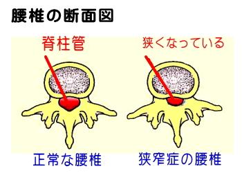 狭窄症の図